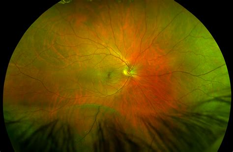 Retinoschisis recognizing pathology optos