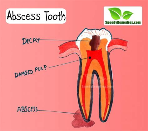 home remedies for abscess tooth home remedies by