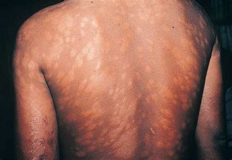 leprosy skin lesions leprosy symptoms of leprosy