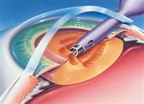 cataract surgery aastha eye hospital in anand eye care hospital in anand