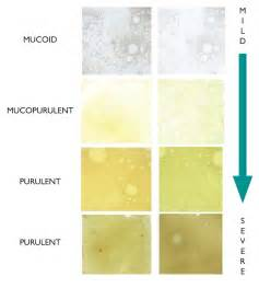 mucus color chart types of mucus pictures to pin on pinsdaddy
