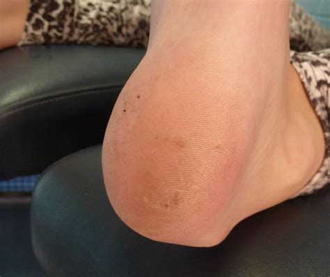 Plantar Warts Pictures Photos What Causes Planters Warts