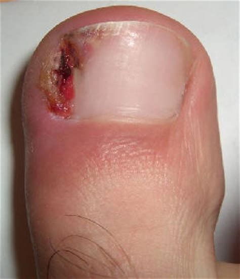 ingrown toenail infection remedies home treatment