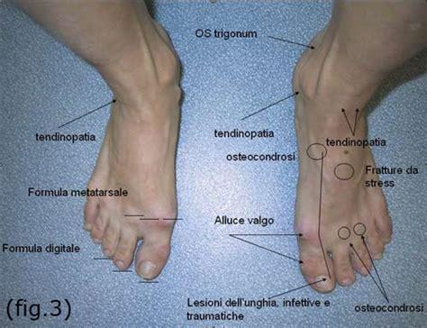 dolore piede laterale interno il piede della ballerina balletto net