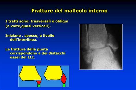 frattura malleolo interno ppt traumatologia della caviglia powerpoint presentation