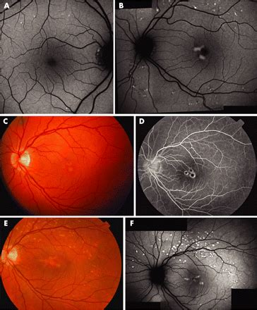 multifocal pattern dystrophy simulating fundus flavimaculatus mutations in the peripherin rds gene are an important