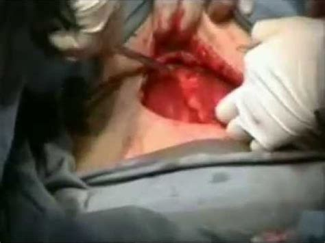 Cesarean Section Youtube