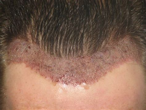 how thick is 1000 hair graft resultate dr patrick mwamba haartransplantation