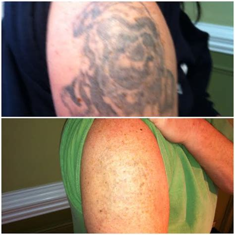 charlotte tattoo removal removal carolina removals