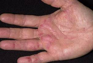 common skin problem pictures identify rashes
