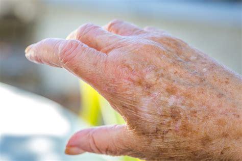 tratamientos tratamientos para las manchas 5 remedios caseros para eliminar manchas por la edad