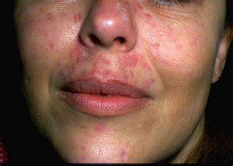 systemic lupus erythematosus lupus sle diagnosisdude