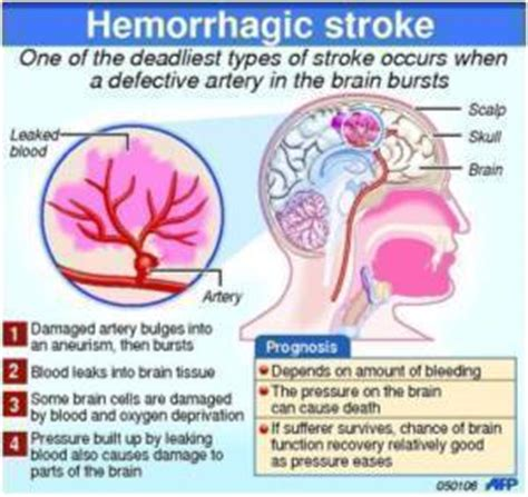 stroke call 911 clot buster for stroke books strokes caused by blood clots may be treated by clot