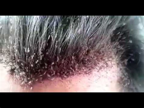 una cabeza llena de se 241 ora con la cabeza llena de piojos youtube