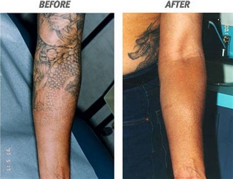 types of tattoo removal lasers the risk of laser removal in arm