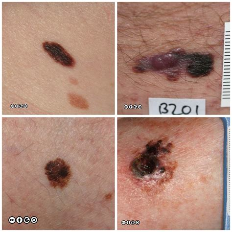 About My Skin Cancer by Melanoma Skin Cancer 909