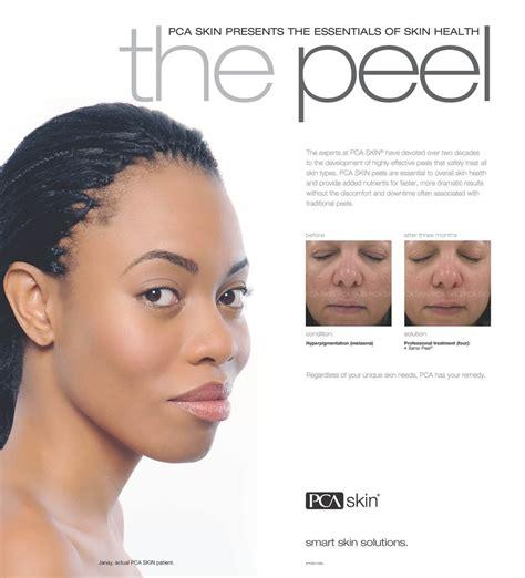 Pca Detox Gel Pore Treatment Directions by Pca Peel 174 Treatments