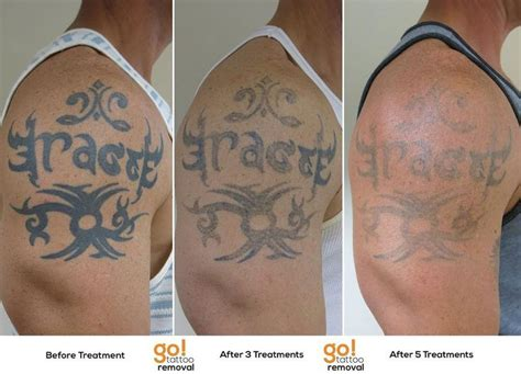tattoo removal sessions removal in sections oddlysatisfying