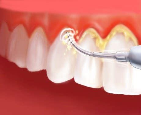 Zirkonkrone Polieren by Zahnfleischentz 252 Ndung Die Zahnklinik Thermaldent F 252 R