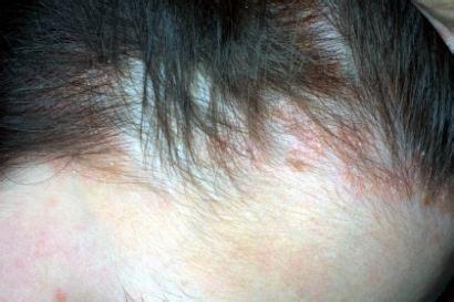 macchie rosse in testa prurito alla testa tutte le possibili cause nanopress