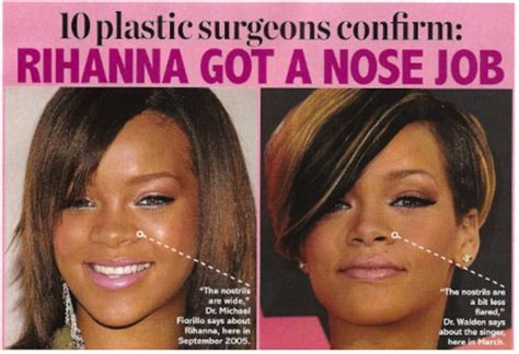 Did Get A Nose by Did Rihanna Get A Nose Before And After Plastic Surgery