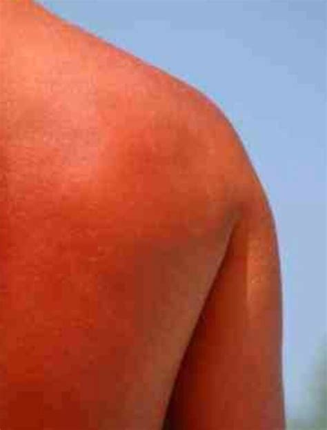 Shower Sunburn by 10 Best Treatments For Sunburn Trusper