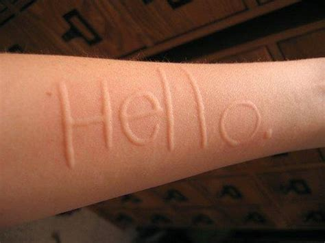 In The Skin Of A Essay by Skin Writing My Condition Dermatographia Writing