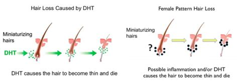 female pattern hair loss dht causes of hair loss trichostem