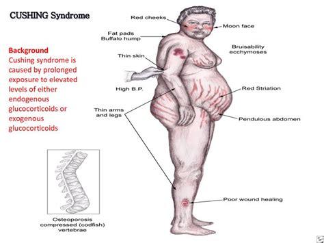 cushings disease 25 best ideas about cushing s on pathophysiology nursing