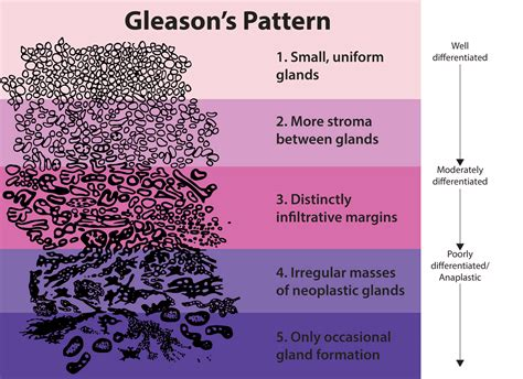 pattern grading wikipedia gleason score for prostate cancer calculator