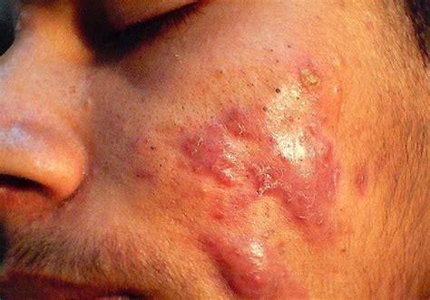 Acne Feldin Lotion acne quistico fotos