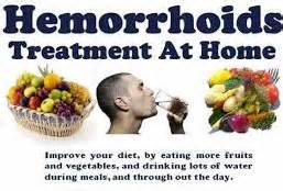 how to treat hemorrhoids at home itchy hemorrhoids causing a problem hemorrhoid no more
