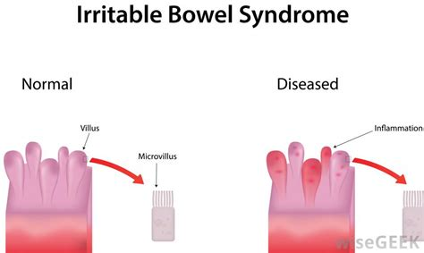 Ibs Stool Test by What Is Symptomatology With Pictures
