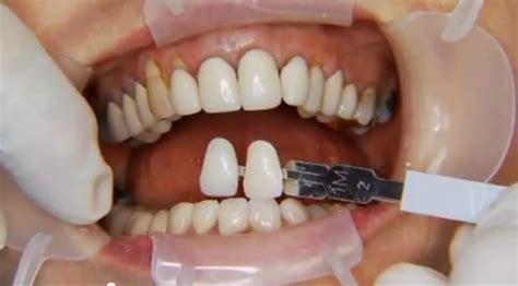library dissertation topics in prosthodontics dissertationsse thesis prosthodontics