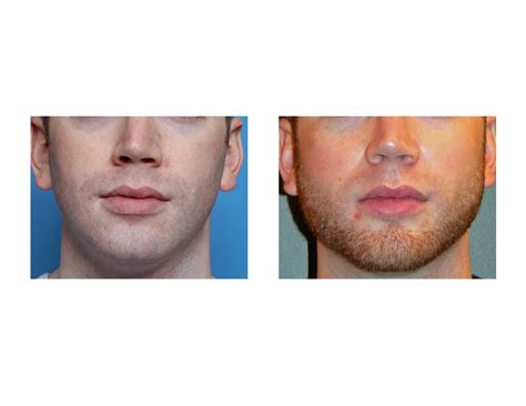 angular jaw line chin implant archives page 7 of 10