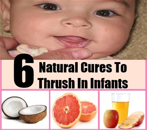 ways to get rid of thrush in adults rc auta info