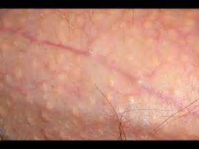 skin colored bumps on penile shaft pearly white papules home remedies for ppp pearly penile