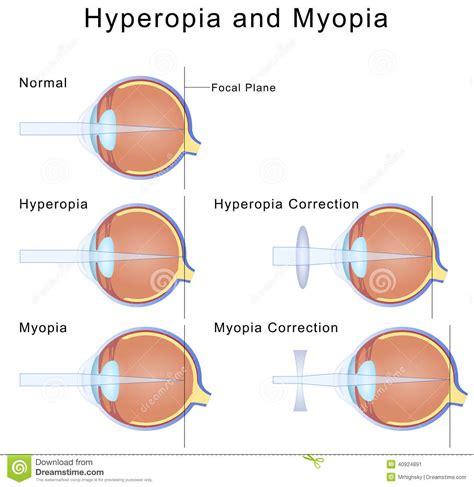 Op 0123 Hyper Vs Clear myopi och hyperopia vektor illustrationer bild 40924891