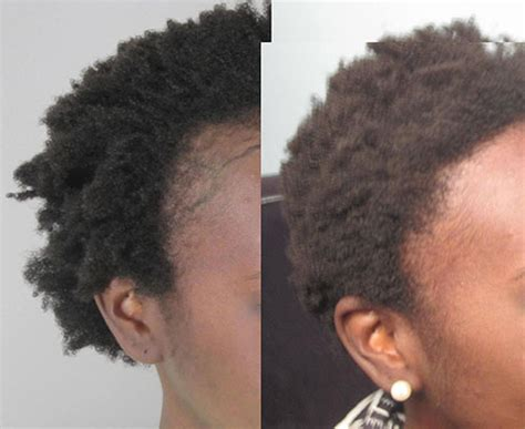 african american hair transplant women s hair transplant in los angeles