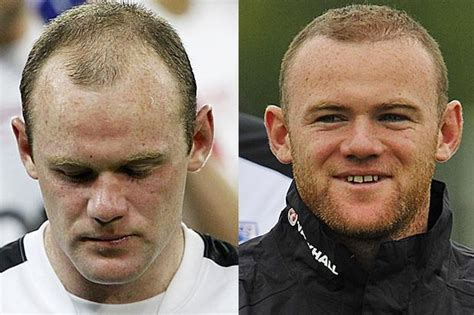 jobs in hair transplant technicianjobs london wayne rooney hair transplant before and after hairline