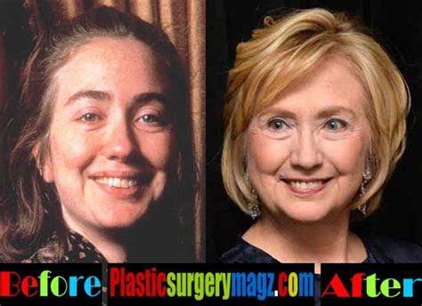 did hillary clinton have plastic surgery 2015 hillary clinton plastic surgery before and after