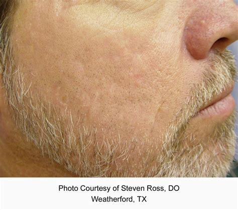 cutera laser genesis treatment cutera laser genesis peninsula dermatology