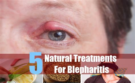 5 cures for blepharitis treatment and