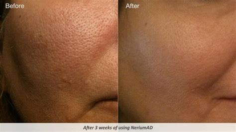 how to get rid of enlarged pores