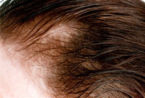 male pattern hair loss female hair loss causes treatments and prevention