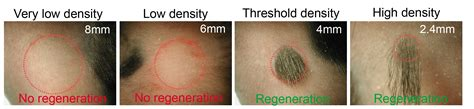does reducing 5ar regrow hair plucking hairs in dense pattern can prompt hair regrowth
