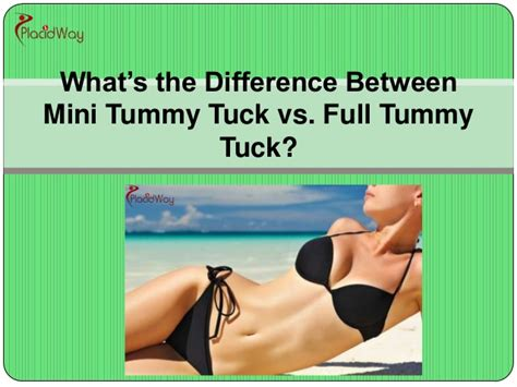 what is the difference between a full and queen bed what is the difference between mini tummy tuck vs full