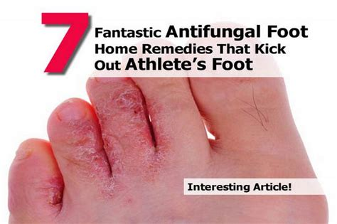kill athlete s foot in shoes how to kill athlete s foot in shoes 28 images 1000