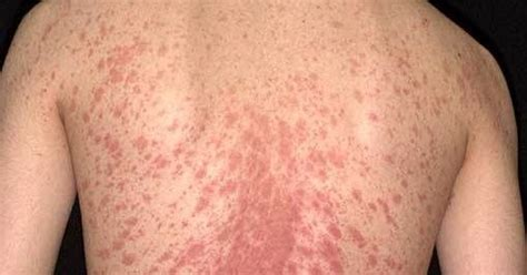 christmas tree virus rash about health pityriasis rosea