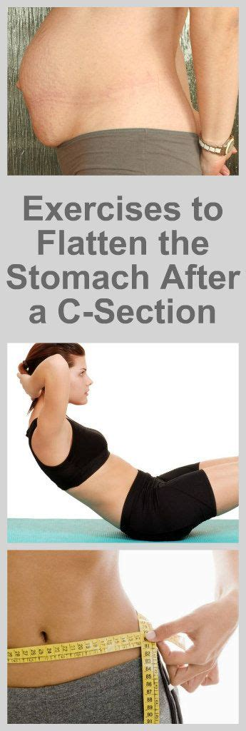 how to flatten your stomach after a c section the best exercises to flatten the stomach after a c